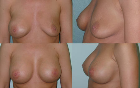 Breast Augmentation Recovery - How Much Time Do You Need?