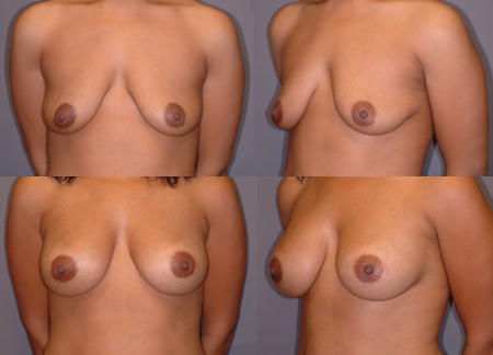 Dr Gaby Doumit - Cosmetic Surgeon Breast Augmentation