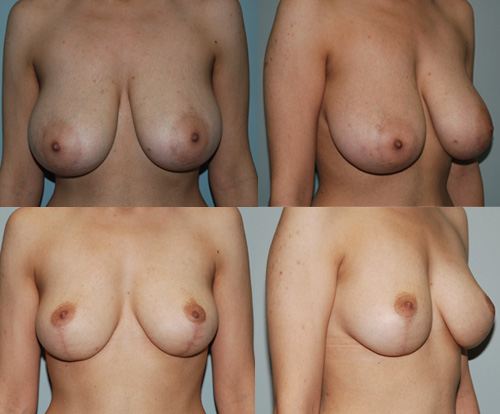 Breast Lift Toronto Breast Lift Before and After