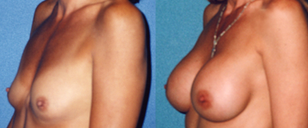 Breast Implants Photos Pics of Real Women ImplantInfo